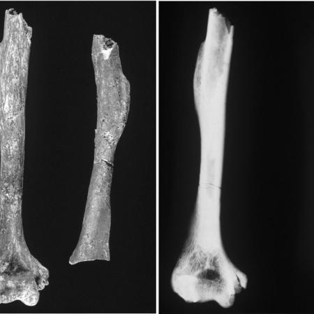 Humérus et son radiographie (LP345)