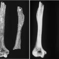 Humerus and its radiography(LP345)