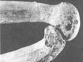 Deformación de los huesos de la rodilla resultado de una actividad continuada de molienda. Extraído de Th. Molleson (1994)